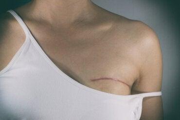 Tipos de cirugías en el tratamiento del cáncer de mama