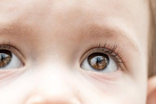 El glaucoma infantil