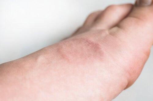 ¿Qué es el granuloma anular?