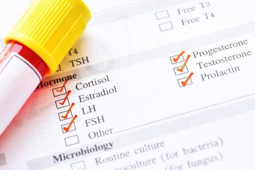 Tipos de hormonas: ¿cuáles son las más importantes?