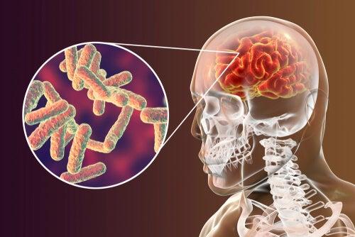 microorganismos meningitis