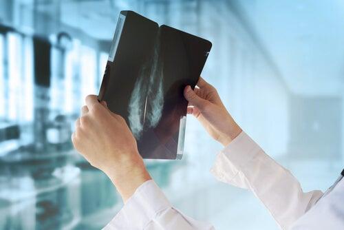 médico observa mamografía