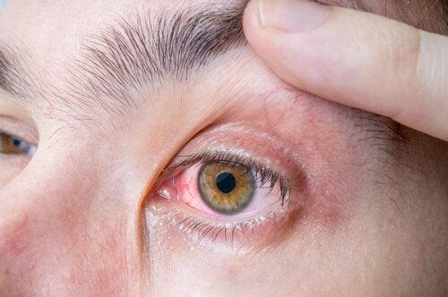 Melanoma ocular: síntomas y causas