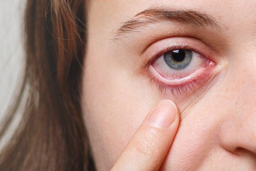 ¿Qué son las migrañas oculares?