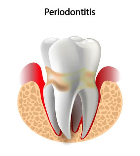 periodontitis y fertilidad