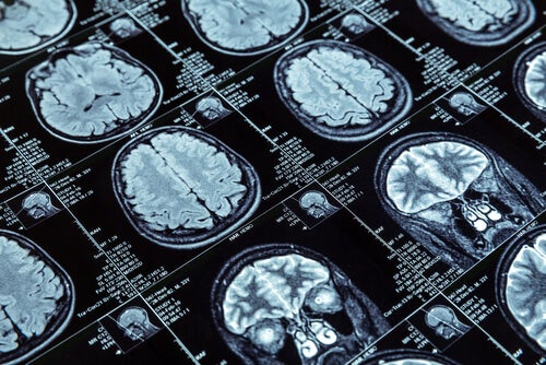 resonancia magnética cerebral