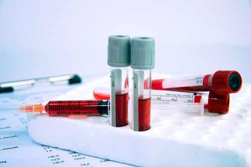 Enfermedades hematológicas: todo lo que debes saber