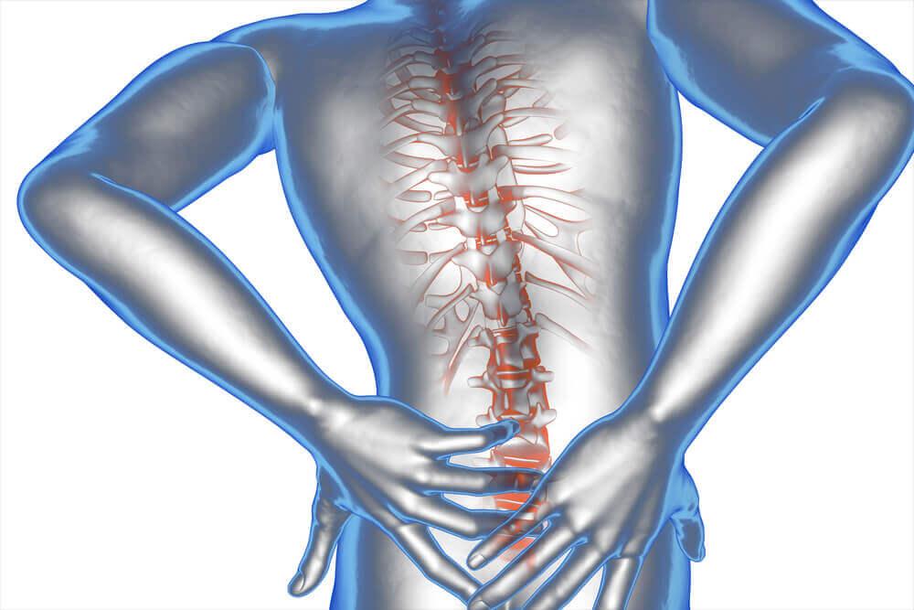 ¿Qué es el síndrome de cauda equina?