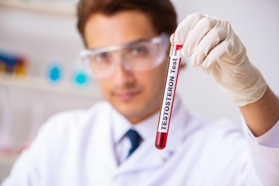 Test de testosterona