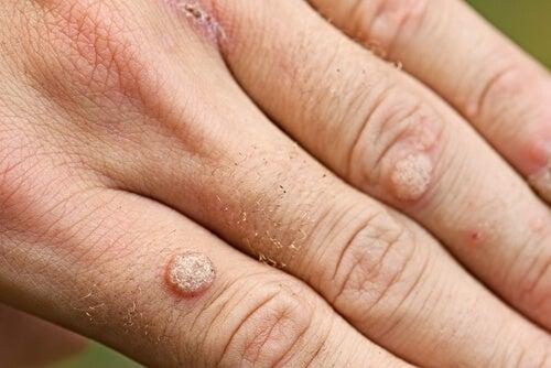 Tipos de verrugas y tratamientos