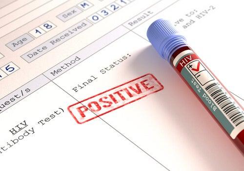 ¿Las personas con VIH están más expuestas al coronavirus?