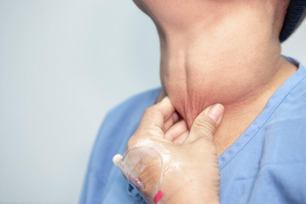 Síntomas del cáncer de tiroides