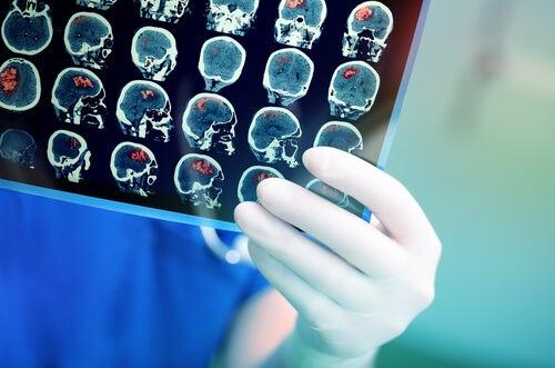 resonancia magnética en un ictus hemorrágico