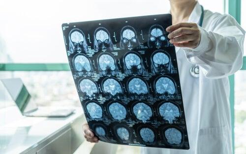 diagnóstico precoz de enfermedades cerebrales