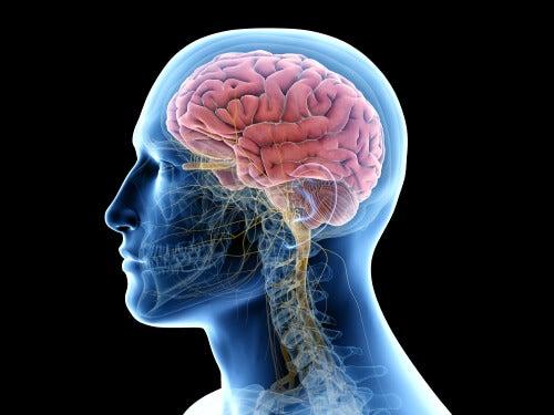tejido cerebral afectado por encefalitis