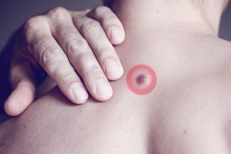 Bultos de grasa en la espalda: ¿a qué se deben?