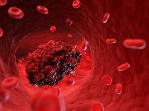 coágulo causa embolia cerebral