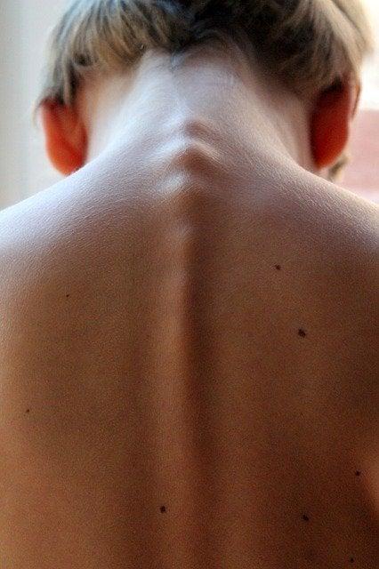 Mielitis transversa: síntomas, causas y tratamientos