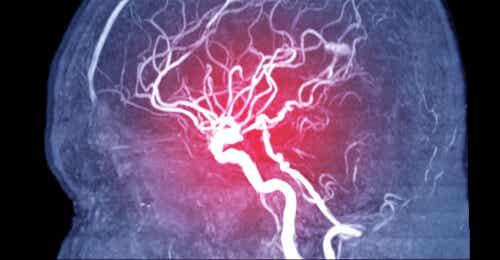 Embolia cerebral: síntomas, tipos y causas