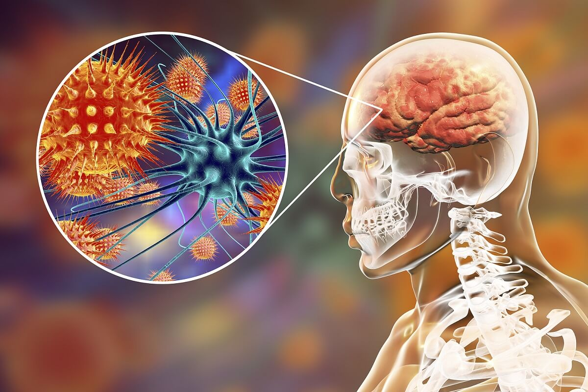 Datos sobre la meningitis