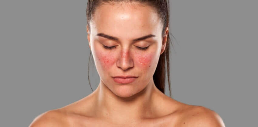 """¿Cómo afecta el lupus a los riñones"""""""