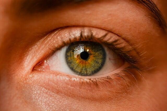 Nevus oculares: ¿son peligrosos?