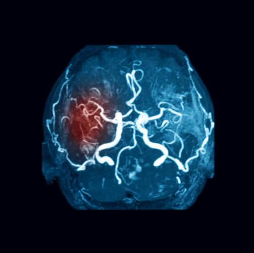 estudio de coágulos en el cerebro