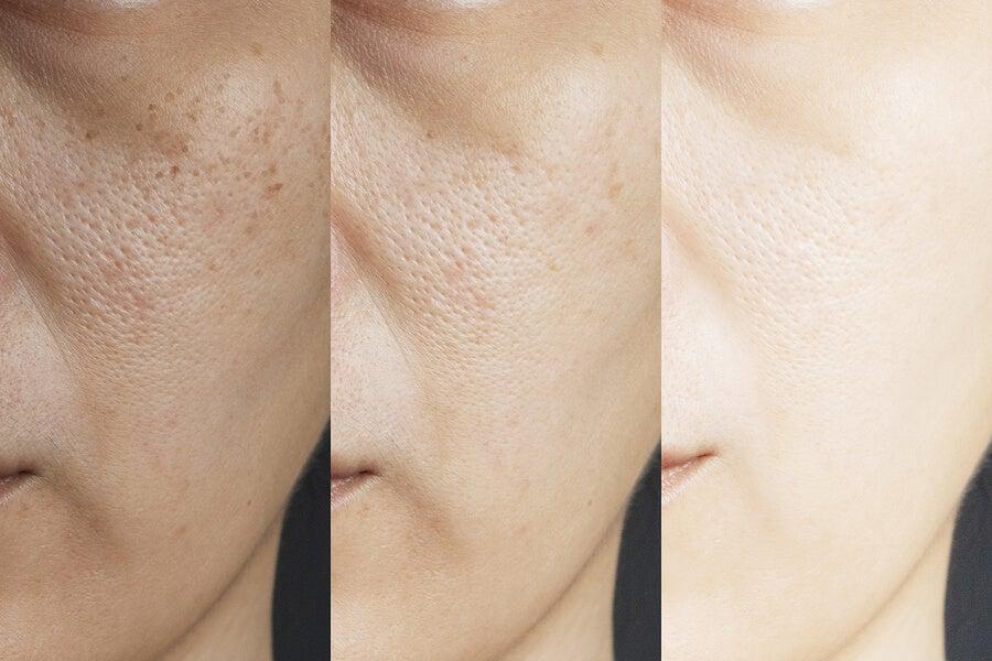 Mejora el aspecto de los poros
