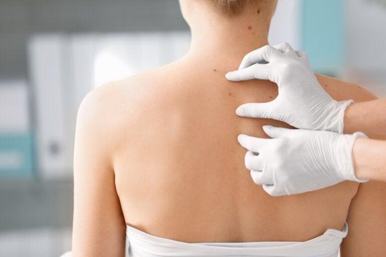 Tumores benignos en la piel: ¿cómo se manifiestan?