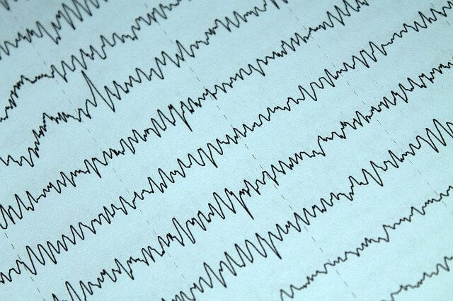 Epilepsia y lactancia materna