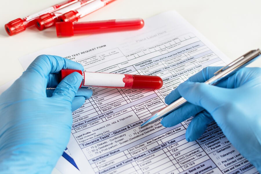 El ayuno antes de un análisis de sangre