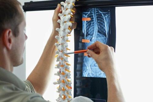 Diagnóstico y tratamiento de la artrosis de columna