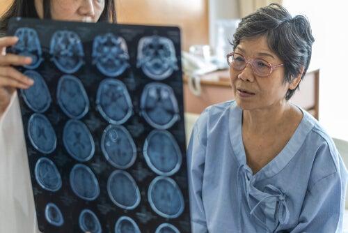 Diferencia entre meningitis y encefalitis