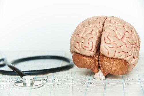 Así afecta la falta de descanso al cerebro