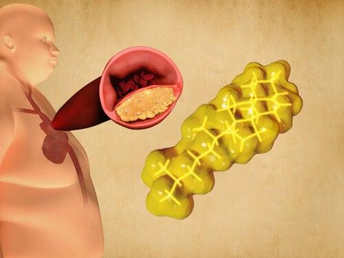 ¿Se pueden controlar los triglicéridos altos con la dieta?