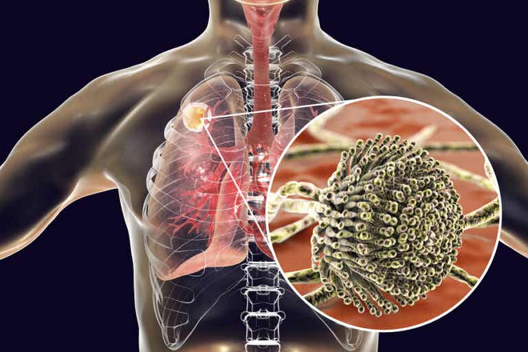 Aspergilosis y hongos en los pulmones