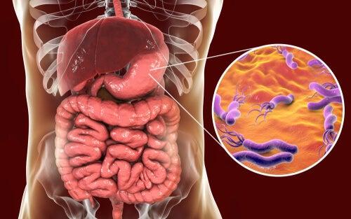 H. pylori en el estómago