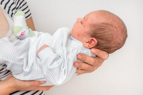 Escarlatina en bebés: ¿cómo tratarla?