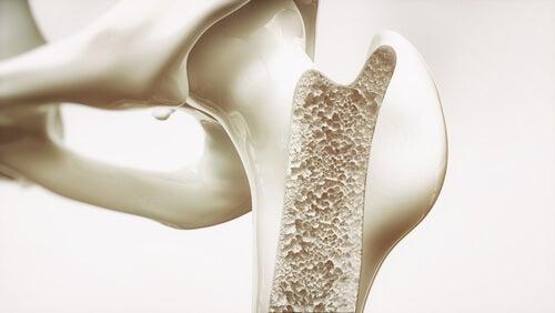 Densidad ósea y tipos de osteoporosis