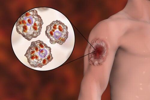 Leishmaniasis en humanos: síntomas y tratamiento