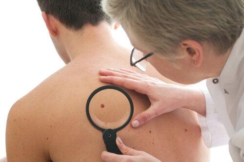 ¿Una dieta saludable puede prevenir el cáncer de piel?