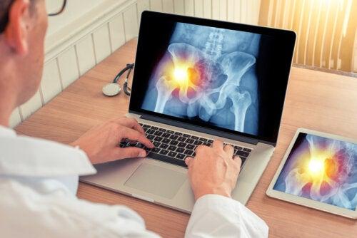 Bursitis de cadera: síntomas y tratamiento
