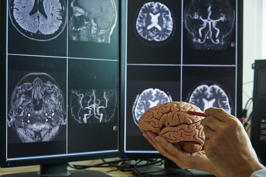 Ictus cerebral que lleva a síndrome de Capgras.
