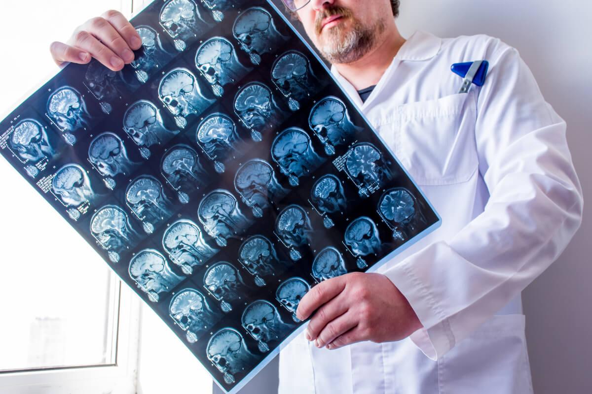 Tomografía computarizada cerebral.
