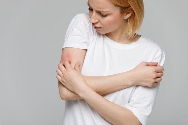 Alergia al frío: síntomas y recomendaciones