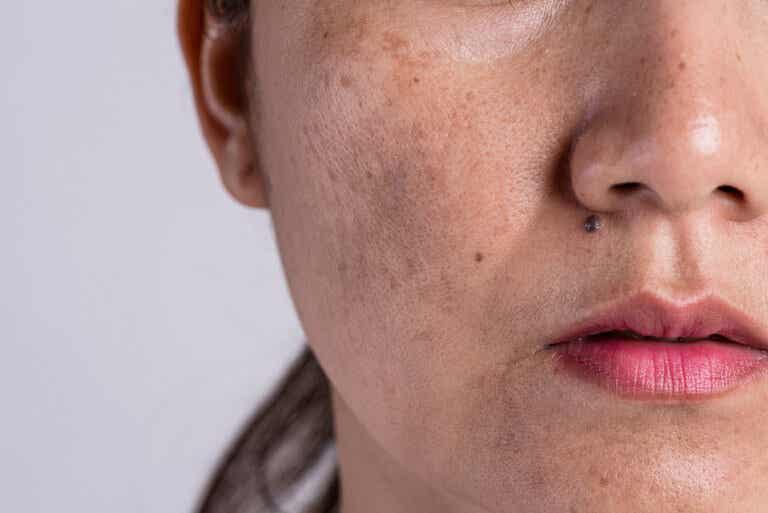Hiperpigmentación: ¿por qué sucede?