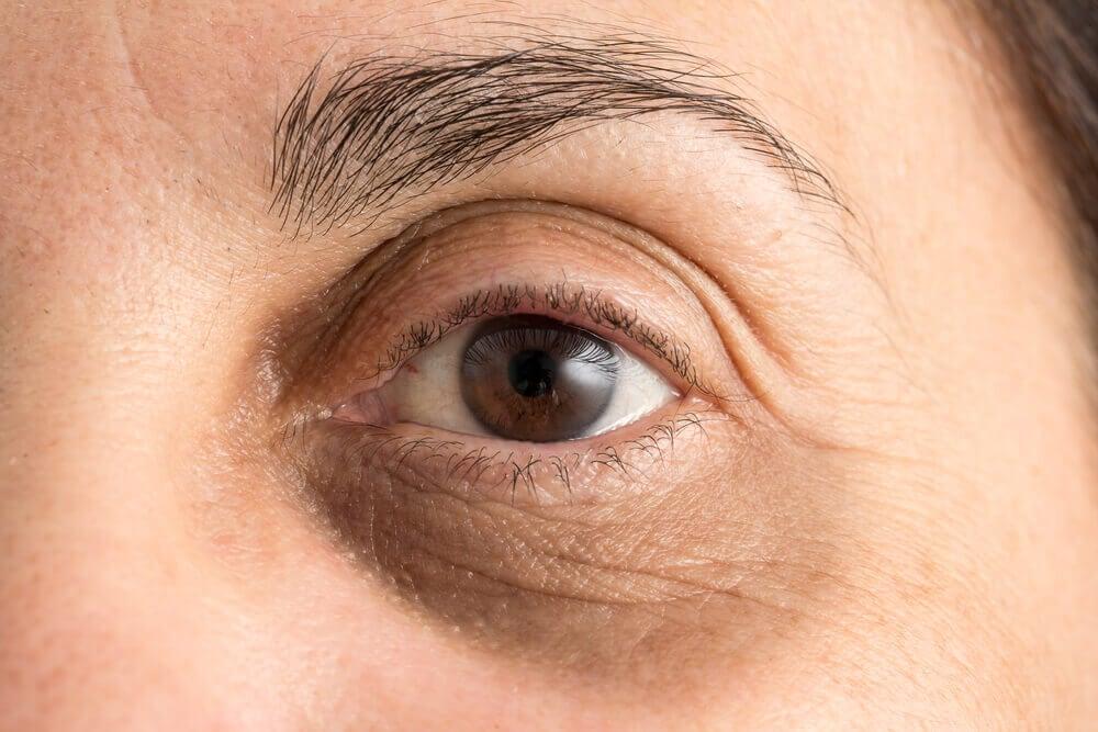 Ojeras y sus posibles causas
