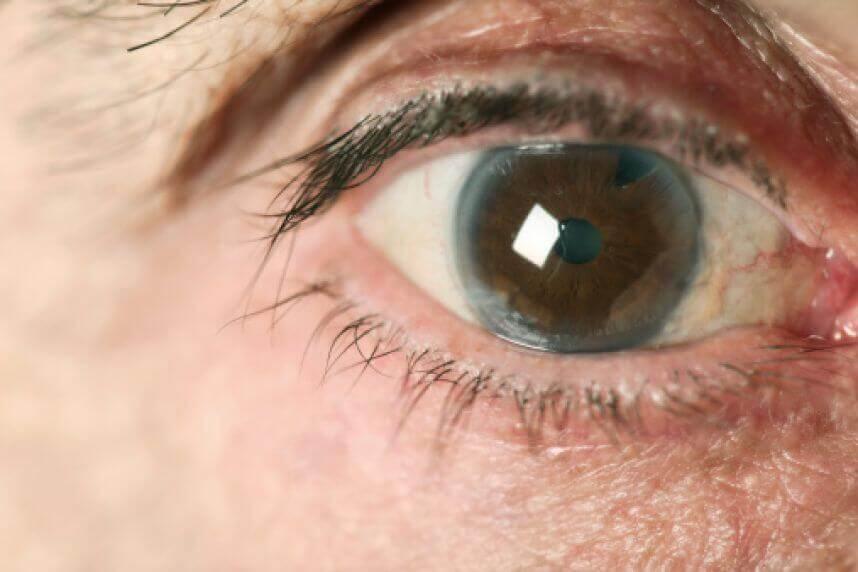 Paciente con glaucoma