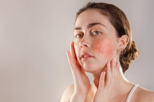 La reactividad de la piel: causas y cuidados
