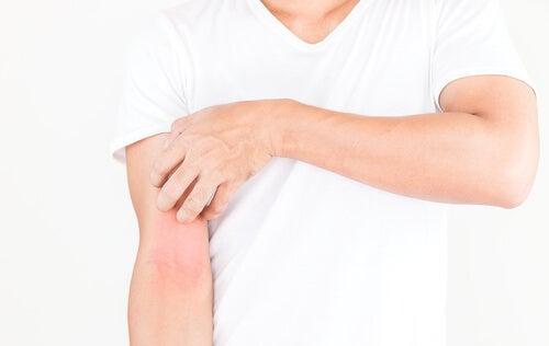 Dermatitis en el brazo